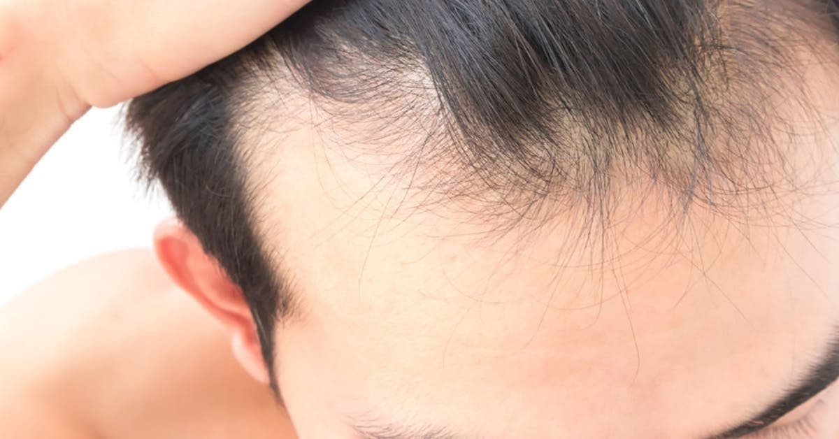 densitee une solution de pointe contre la chute de cheveux alopecie 1