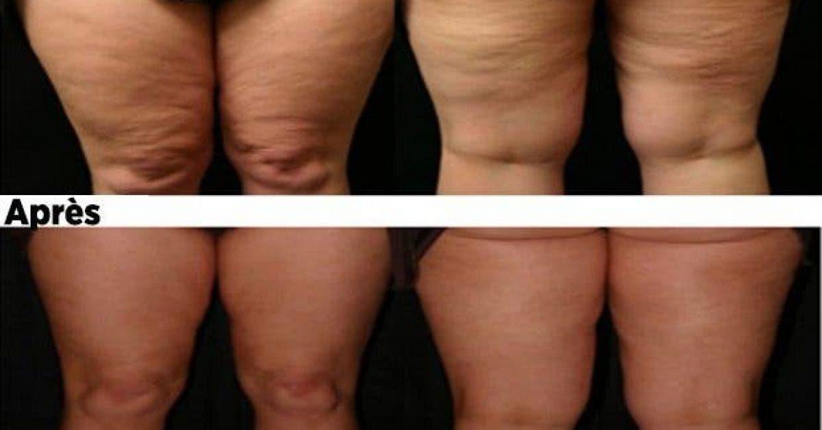 des astuces naturelles et efficaces pour se debarrasser de la cellulite 1