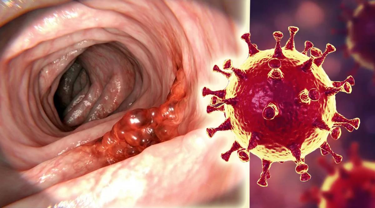 des-chercheurs-creent-un-virus-capable-de-tuer-le-cancer-du-colon