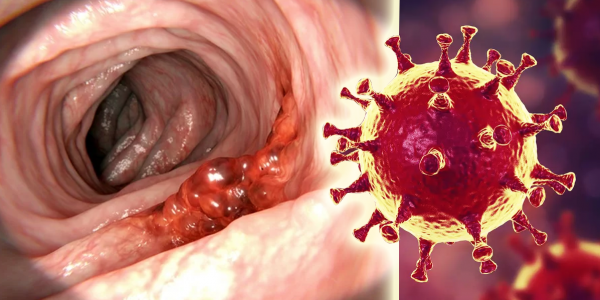des-chercheurs-creent-un-virus-capable-de-tuer-le-cancer-du-colon