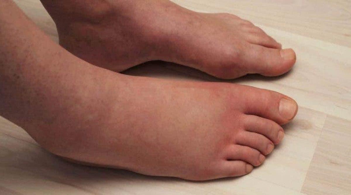 jambes enflées
