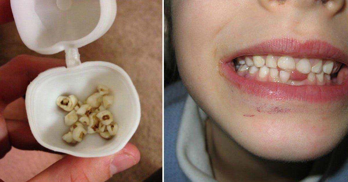 des medecins avertissent les parents ne jetez plus les dents de lait de vos enfants 1 1