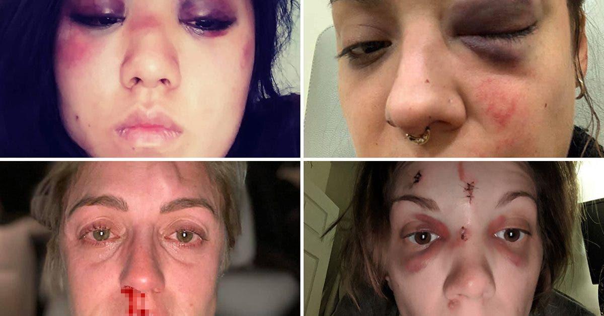 des-victimes-de-violence-domestique-partagent-des-photos-de-leur-situation-alors-que-beaucoup-de-femmes-sont-mortes-pendant-le-confinement