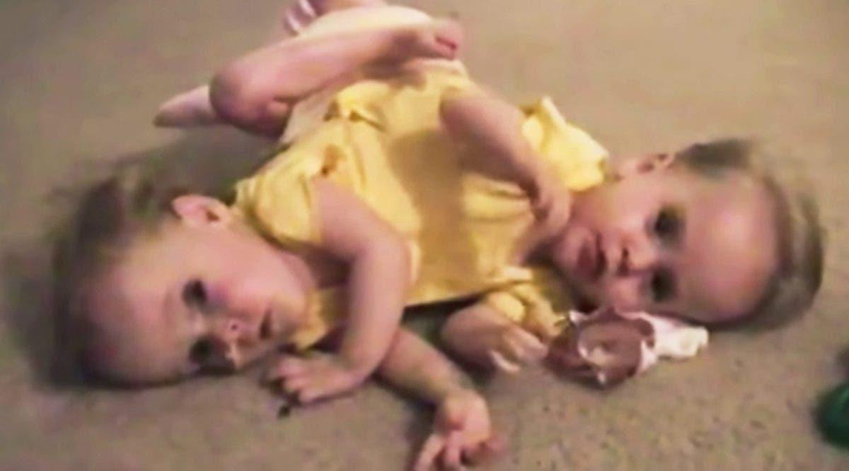 deux-soeurs-jumelles-nees-siamoises-et-separees-a-lage-de-4-ans---ce-quelles-sont-devenues-13-ans-plus-tard