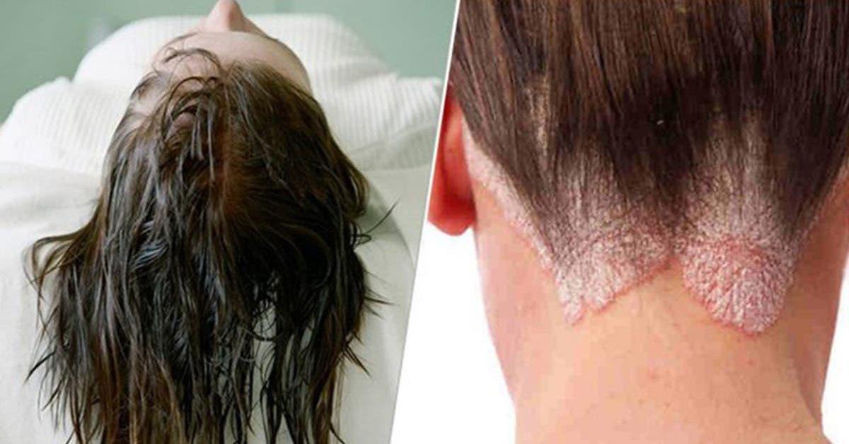 dormir-avec-les-cheveux-mouilles-peut-provoquer-7-maladies-differentes