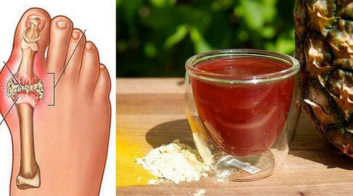 éliminer les cristaux d'acide urique du corps et prévenir la goutte et les douleurs articulaires