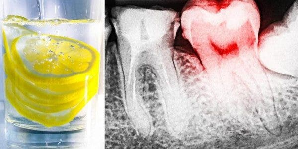 L'eau au citron peut détruire vos dents