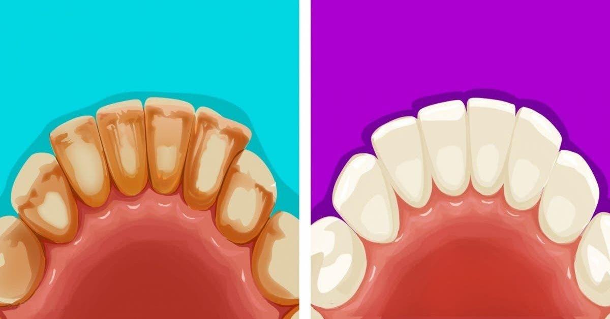 Éliminez la plaque dentaire naturellement avec des aliments de votre cuisine