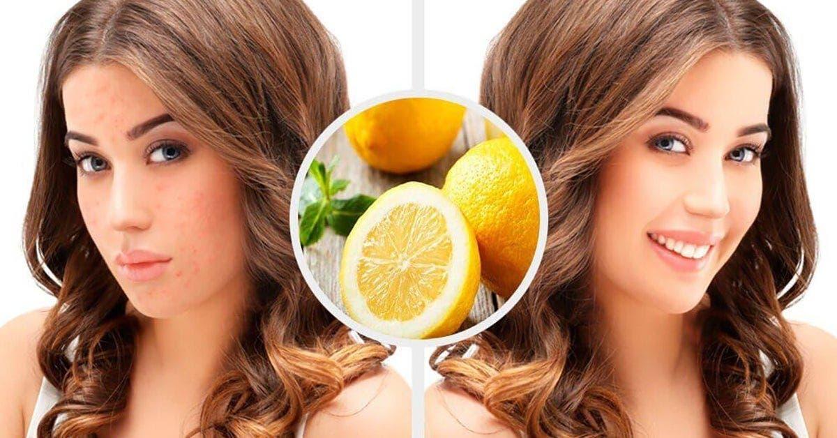 eliminez toutes les cicatrices dacne juste avec du citron 1 1