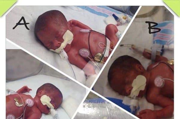 enceinte de triplés