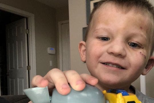 Un enfant de 3 ans atteint d'un trouble de la parole frappé et fouetté avec une laisse de chien par sa mère et son petit ami