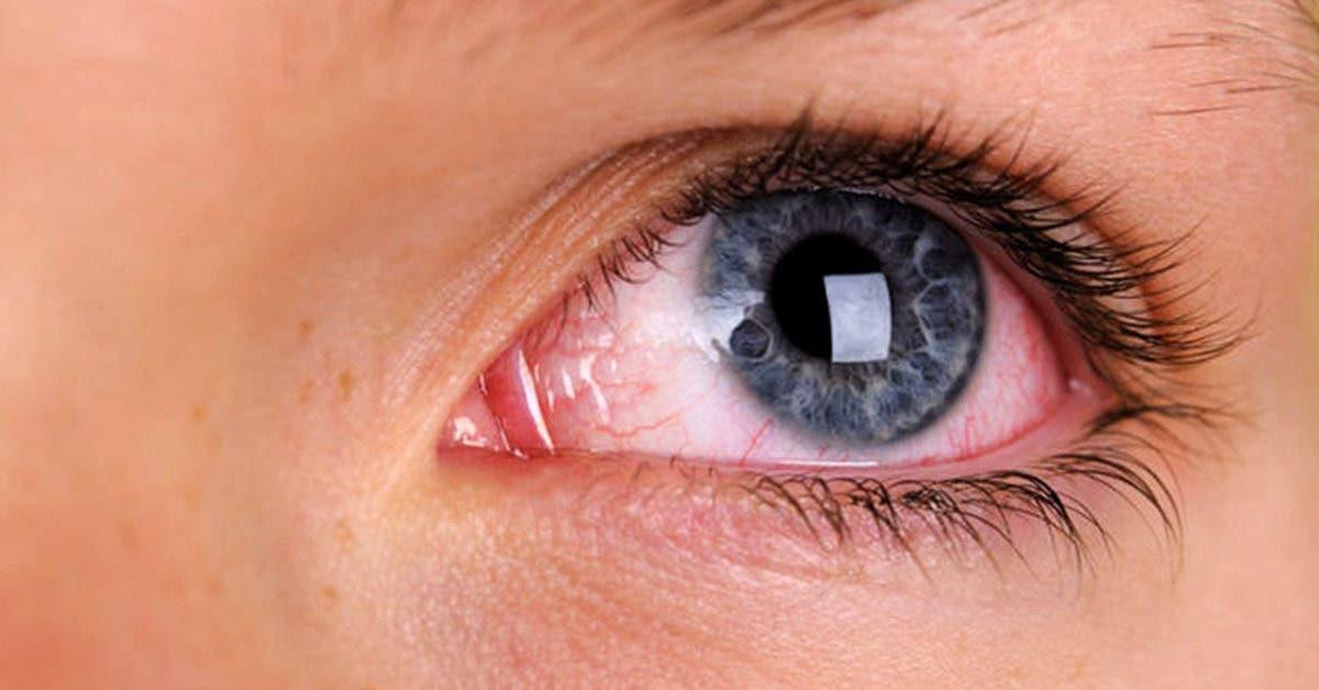 Les différentes causes des taches de sang sur les yeux (épanchement oculaire)