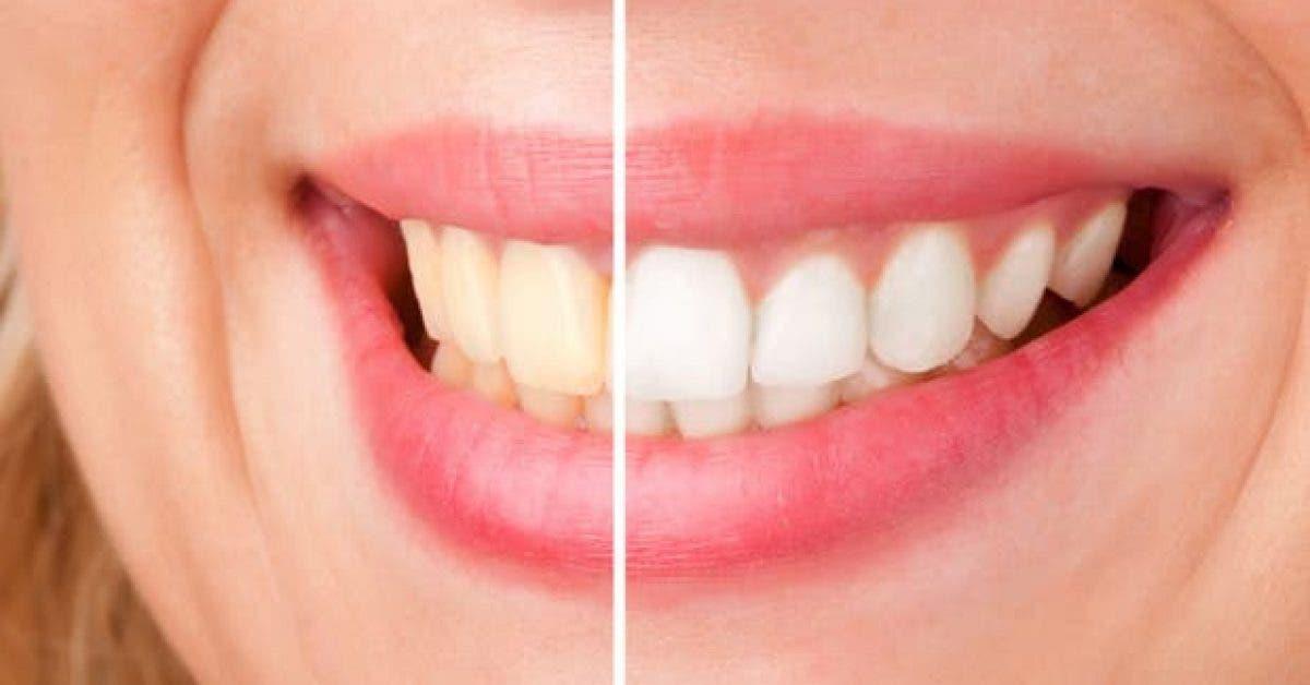 essayez ces astuces naturelles pour blanchir vos dents 1 1