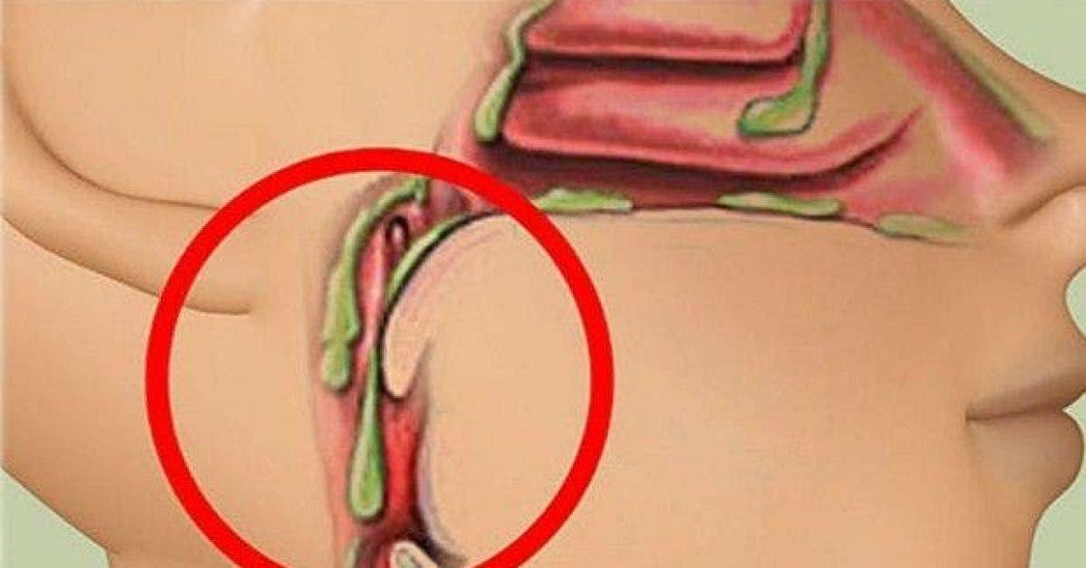 evitez ces 4 aliments pour reduire le mucus dans la gorge 1