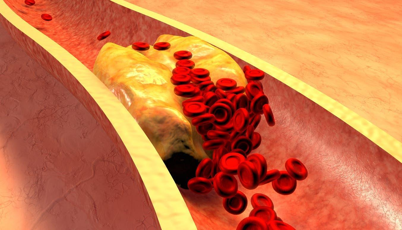 exces de cholesterol