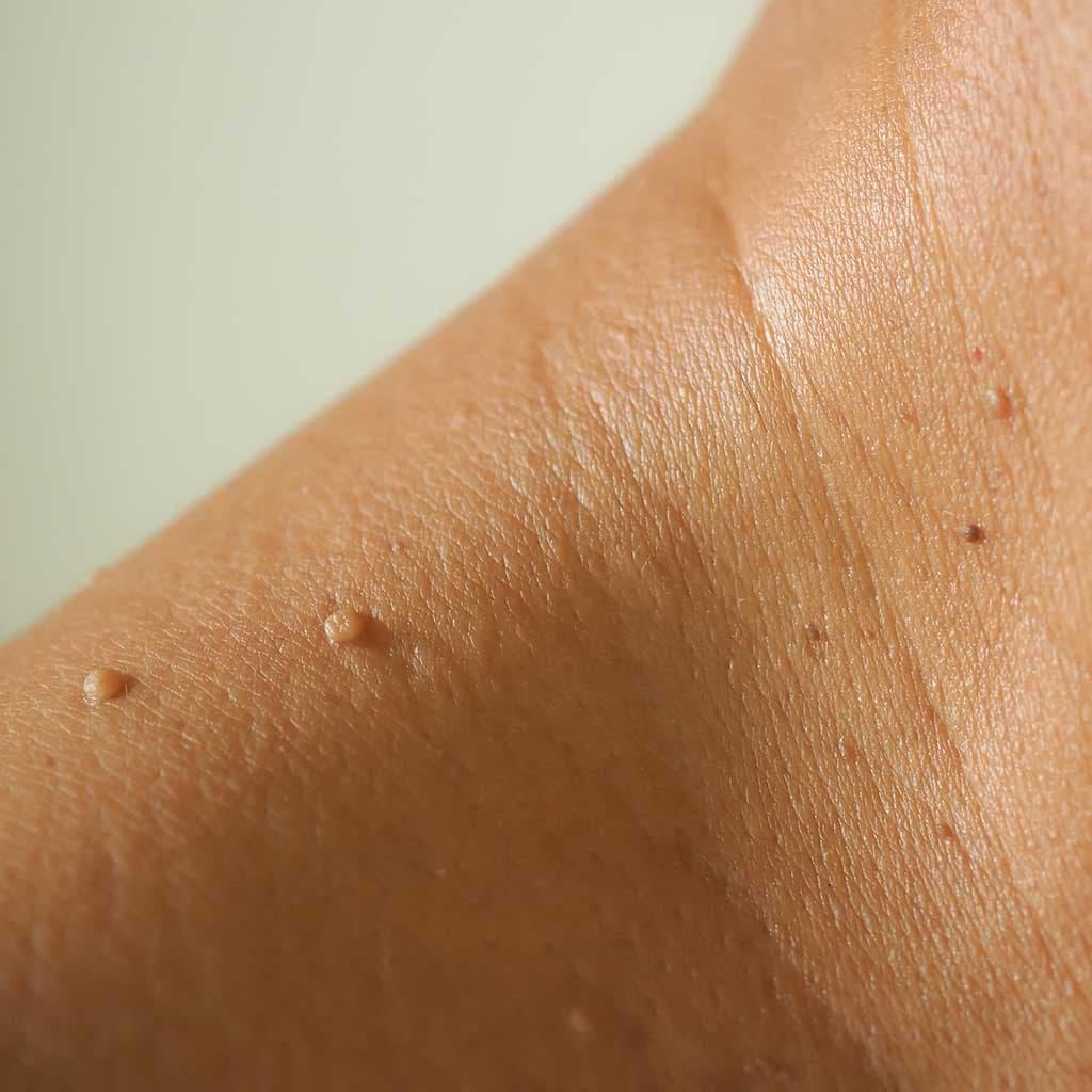 excroissance peau
