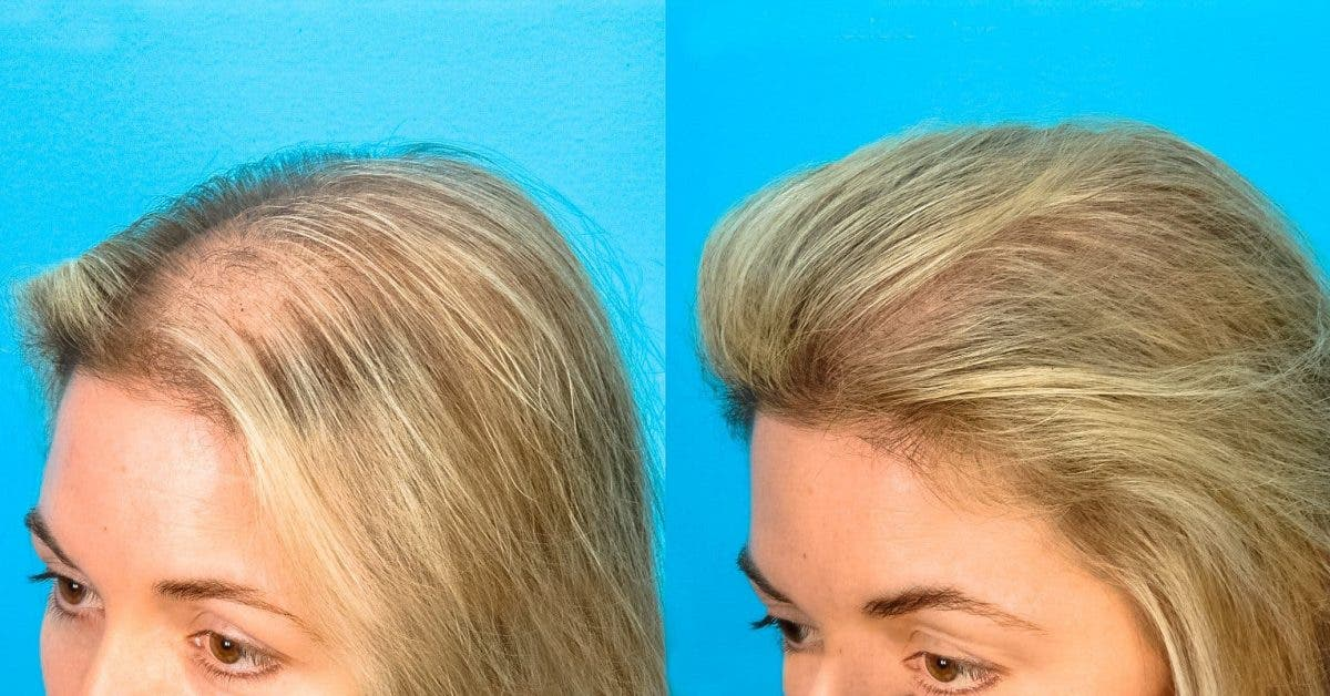 female prp Doctor Bauman Medical Patient Before After 1600x800 2