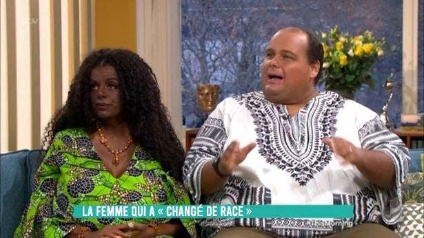 Cette femme née avec une peau blanche a changé de couleur et pense avoir un bébé noir
