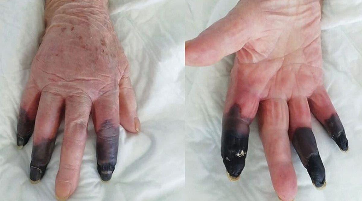 gangrene-ulceres-eruptions-cutanees--les-symptomes-etranges-du-covid-19