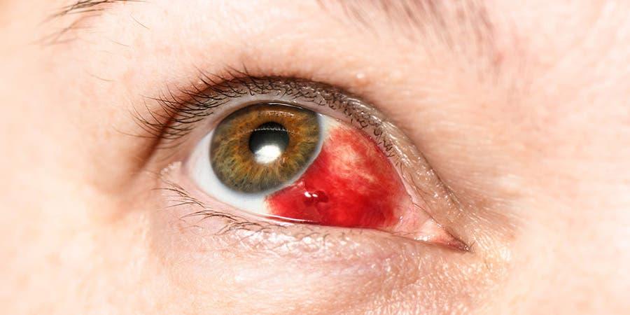 hemorragie sous conjonctivitale