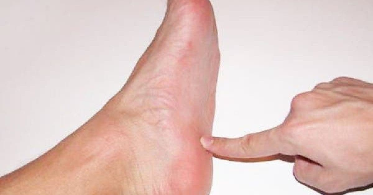 how to get rid of the pain in the heels 1 1