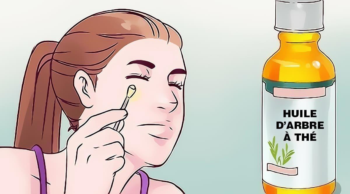 huile-darbre-a-the-6-facons-ingenieuses-de-lutiliser-dont-vous-ne-pouvez-vous-passer