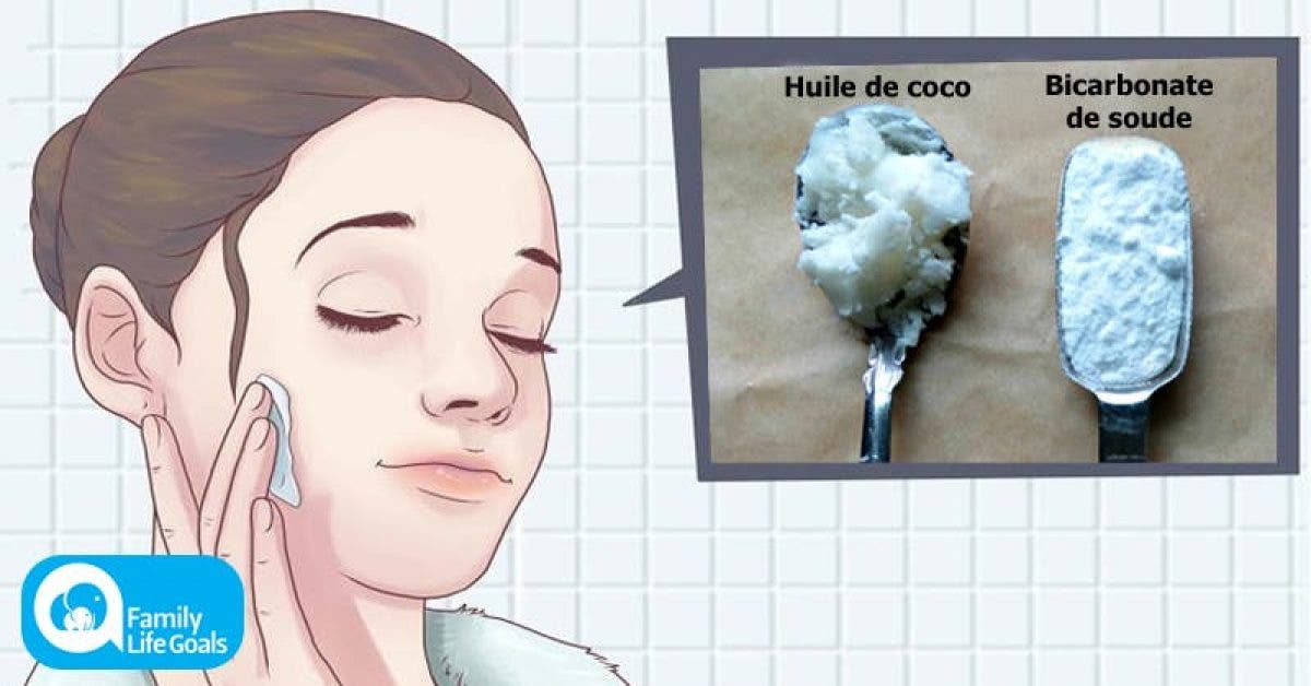 huile de coco et du bicarbonate de soude 1