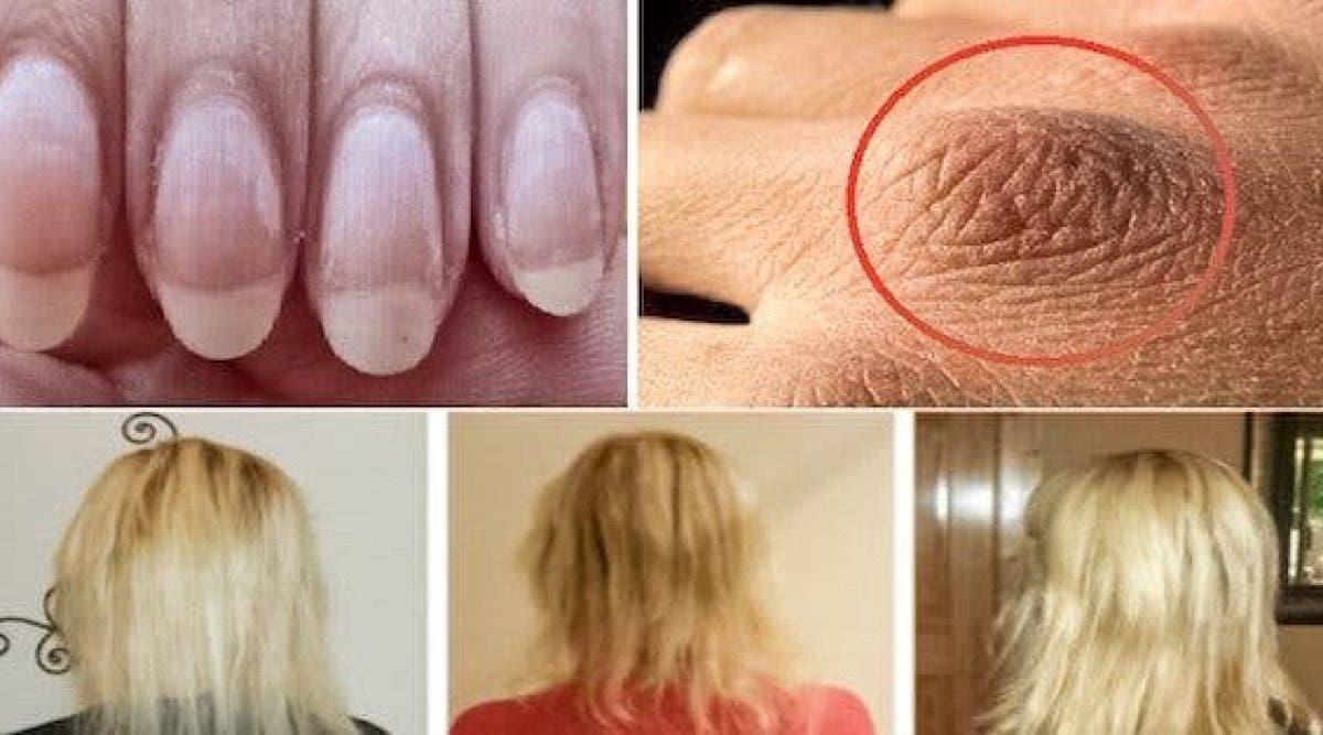 Si vous avez la peau sèche, les ongles cassants ou une chute de cheveux, vous devez d'urgence acheter ces ingrédients !