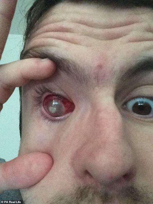 Il perd la vue après avoir gardé ses lentilles de contact sous la douche