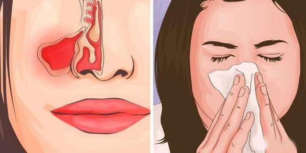 il-vaut-mieux-prevenir-que-guerir-3-gestes-simples-pour-empecher-la-propagation-du-coronavirus