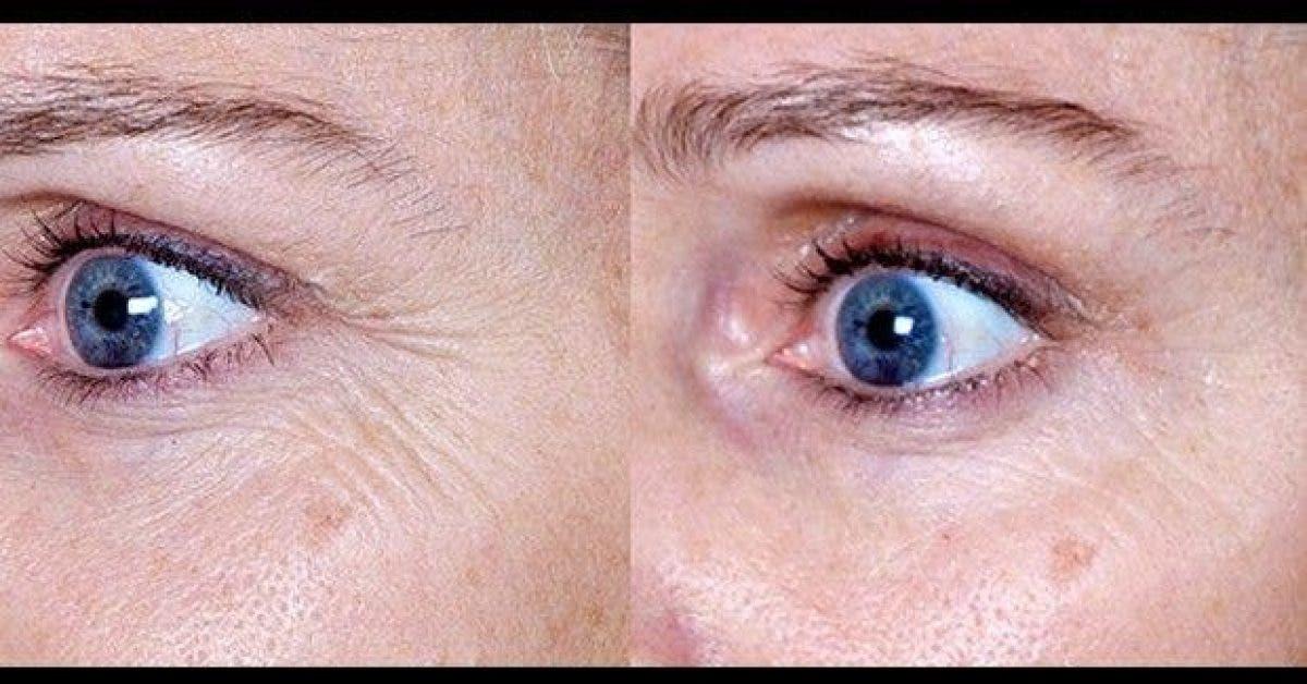 inverser processus de vieillissement de ma peau avec ce traitement naturel changement image 1