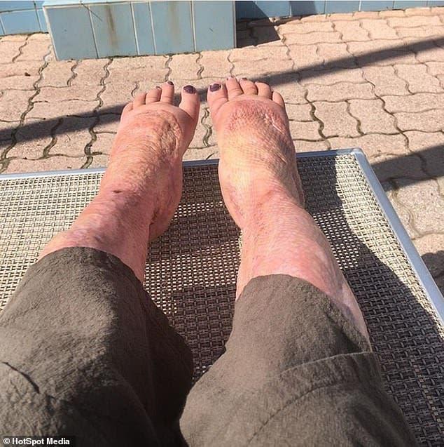 jarney jardin pieds post operation