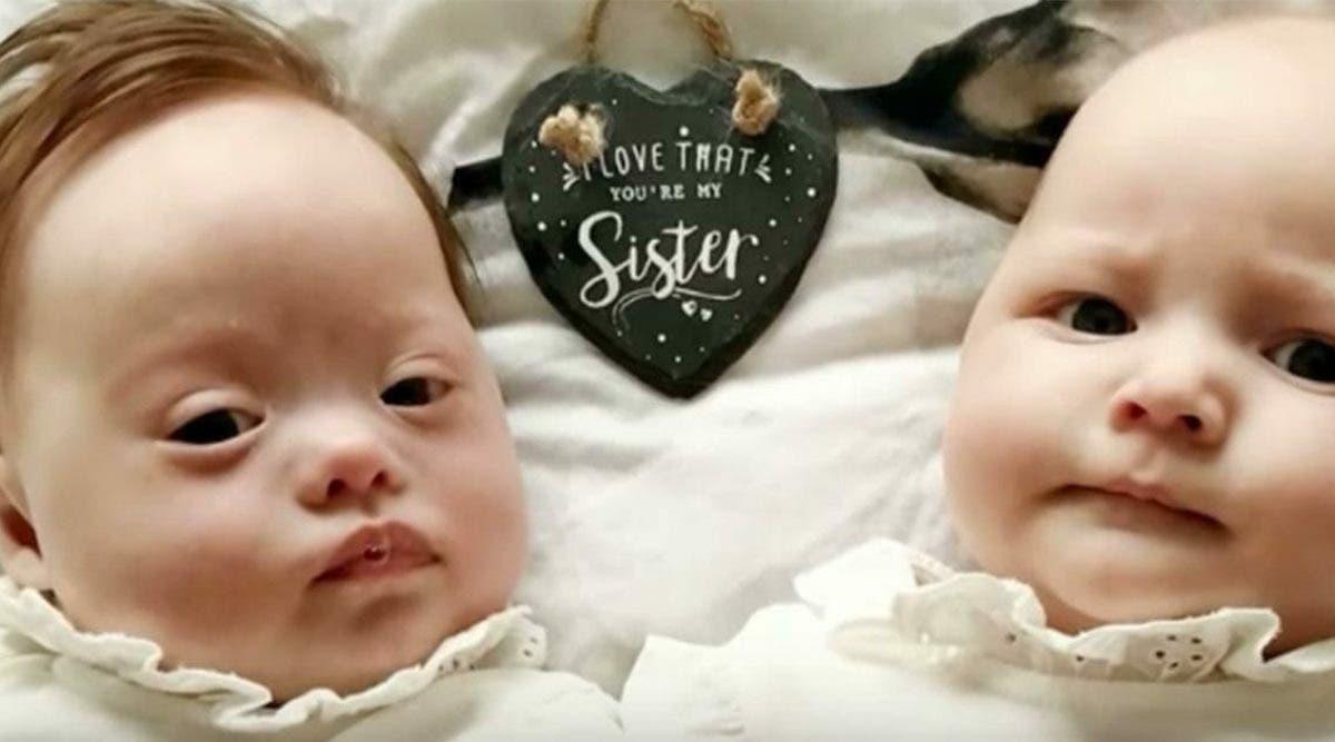 Les jumelles de cette maman sont nées prématurément mais le médecins affirme qu'il est désolé