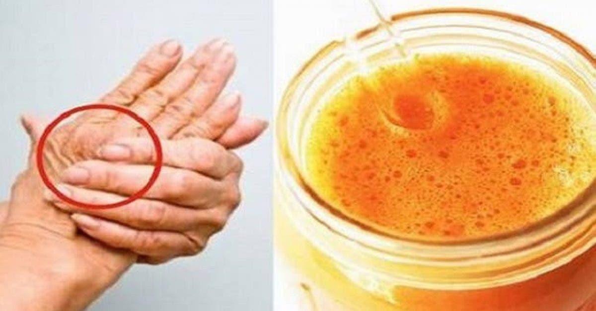 la boisson miracle qui traite larthrose et soulage quasi immediatement la douleur et linflammation 1