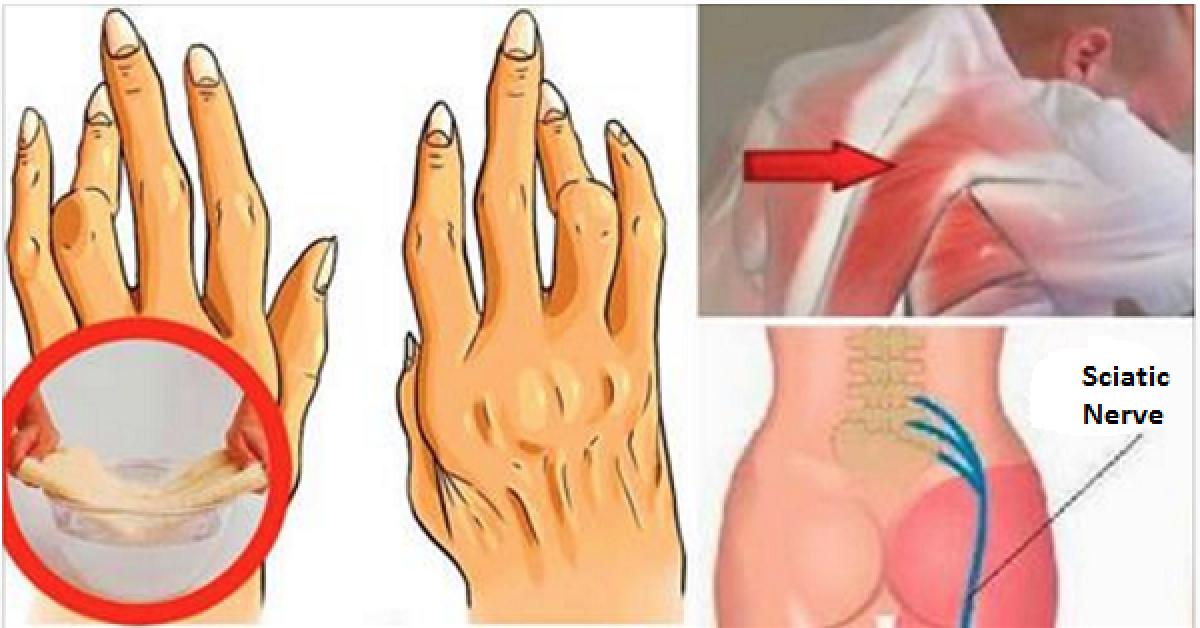 Une astuce géniale pour soulager l'arthrite, la douleur sciatique et le mal de dos