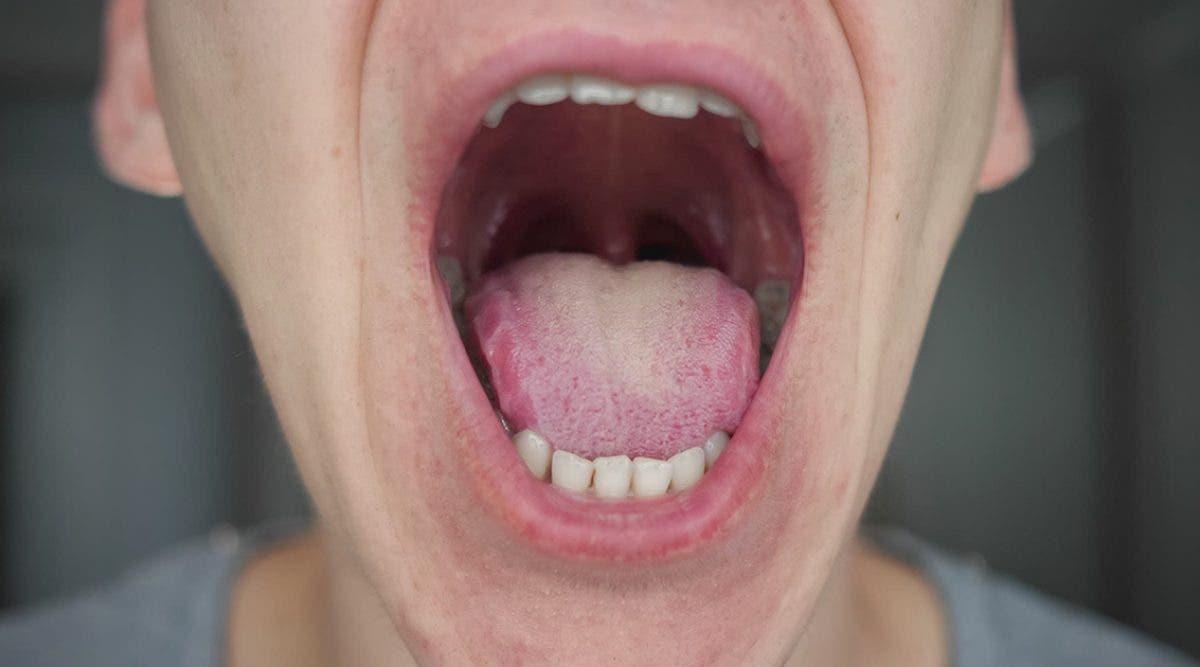 la--langue-covid--symptome-du-coronavirus