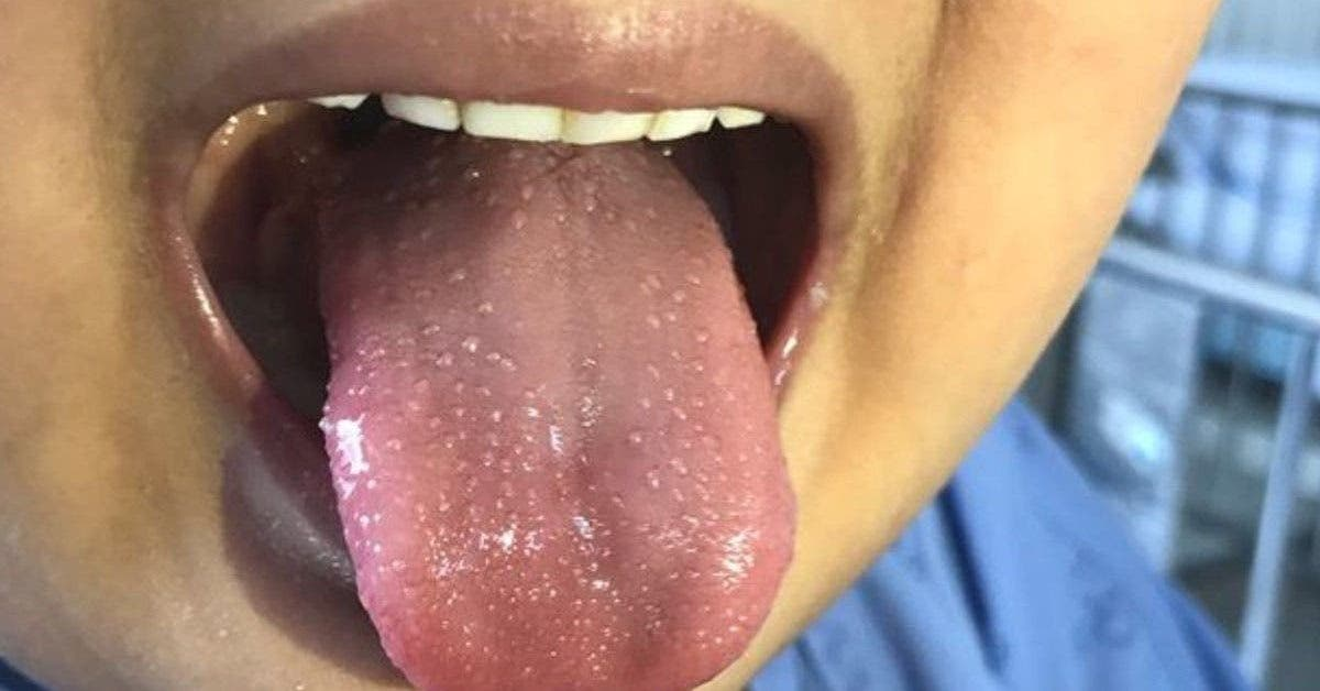 la-maladie-de-kawasaki-qui-pourrait-etre-lie-au-coronavirus-tue-trois-enfants-en-moins-dune-semaine-voici-les-symptomes