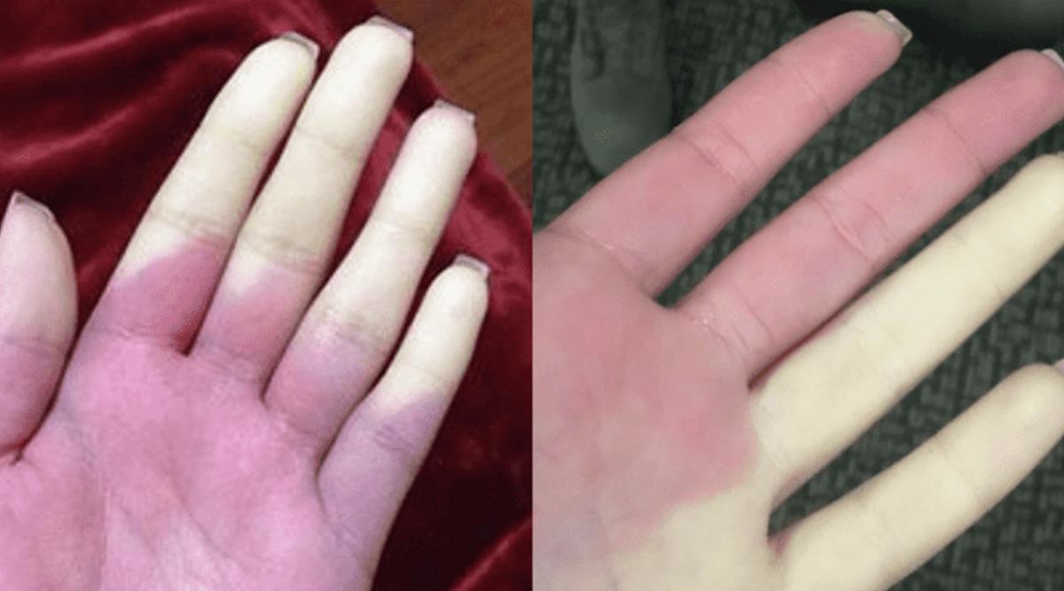 la-maladie-de-raynaud-peut-rendre-vos-doigts-completements-blancs-ou-bleus-des-quil-fait-froid