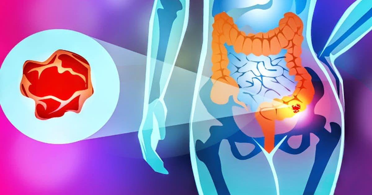 la plupart des cancers sont causes par une mauvaise alimentation 5 aliments a eviter 1