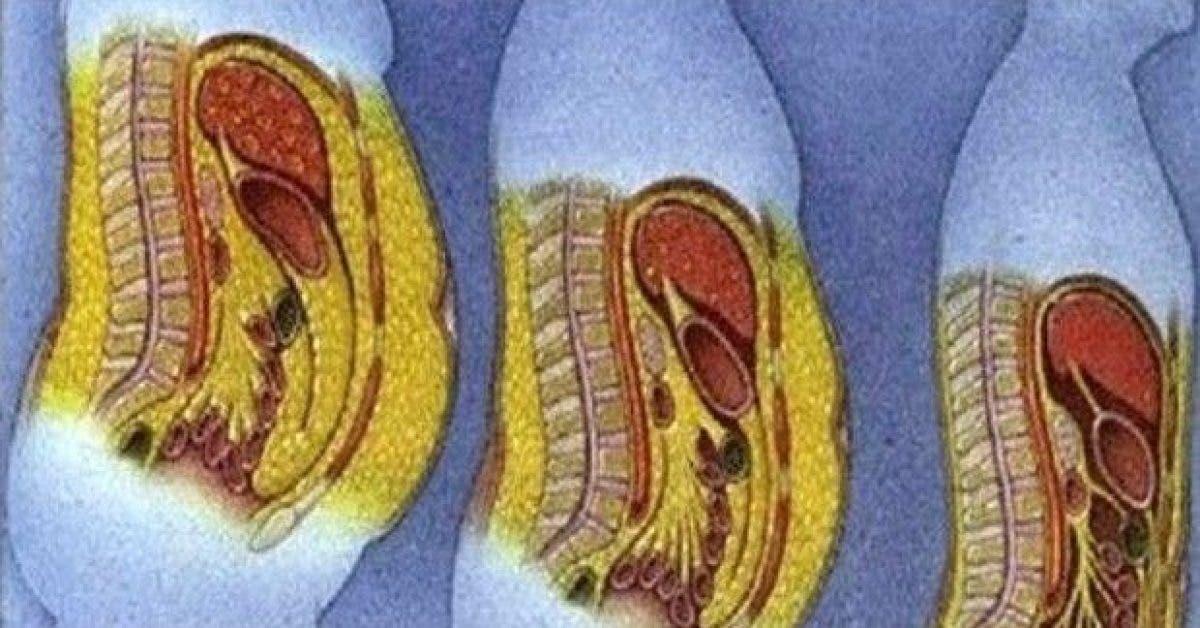 la recette des nutritionnistes perdre la graisse abdominale rapidement 1