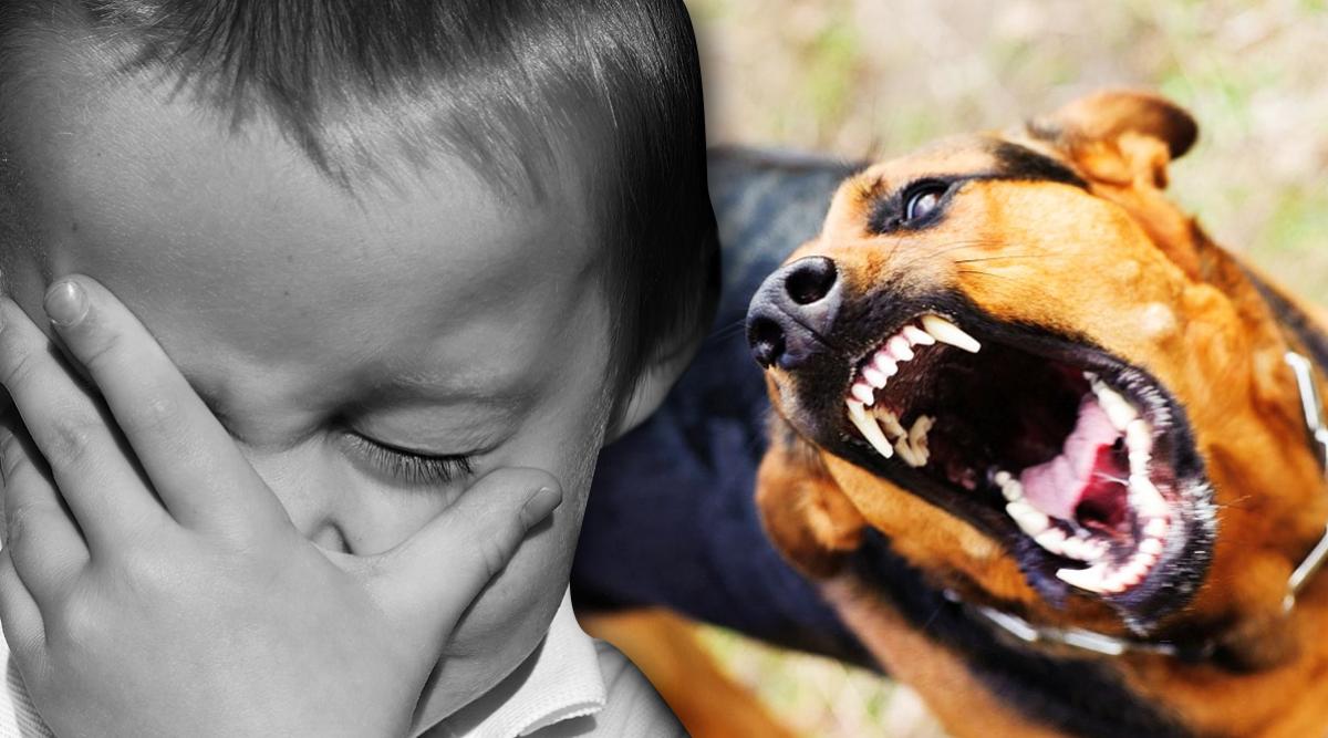 le-chien-de-ma-mere-a-mordu-mon-fils-de-4-ans-au-visage--que-dois-je-faire