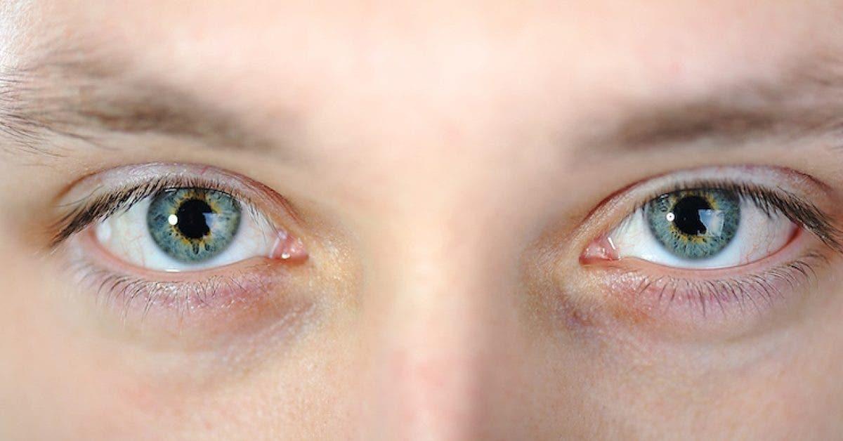 le-covid-sattaque-desormais-aux-yeux--les-symptomes-a-identifier