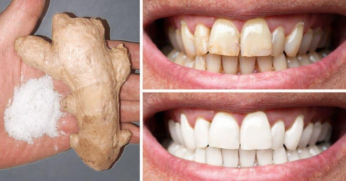 le gingembre et le sel permettent de blanchir les dents