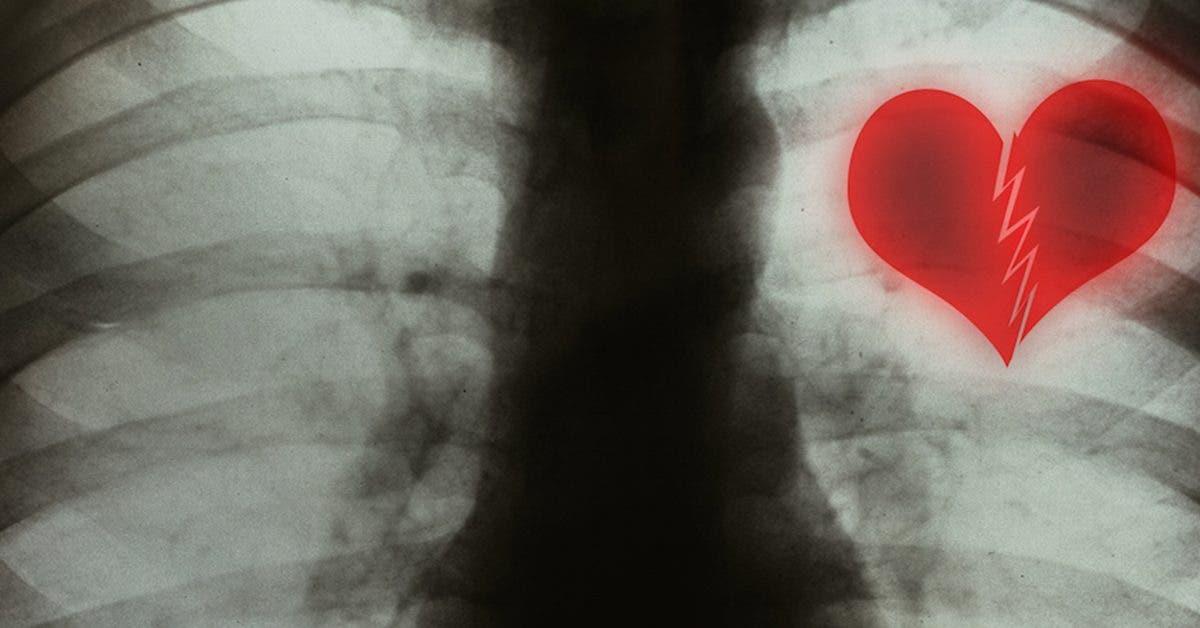 le-syndrome-du-coeur-brise-existe-et-peut-etre-declenche-par-des-situations-stressantes