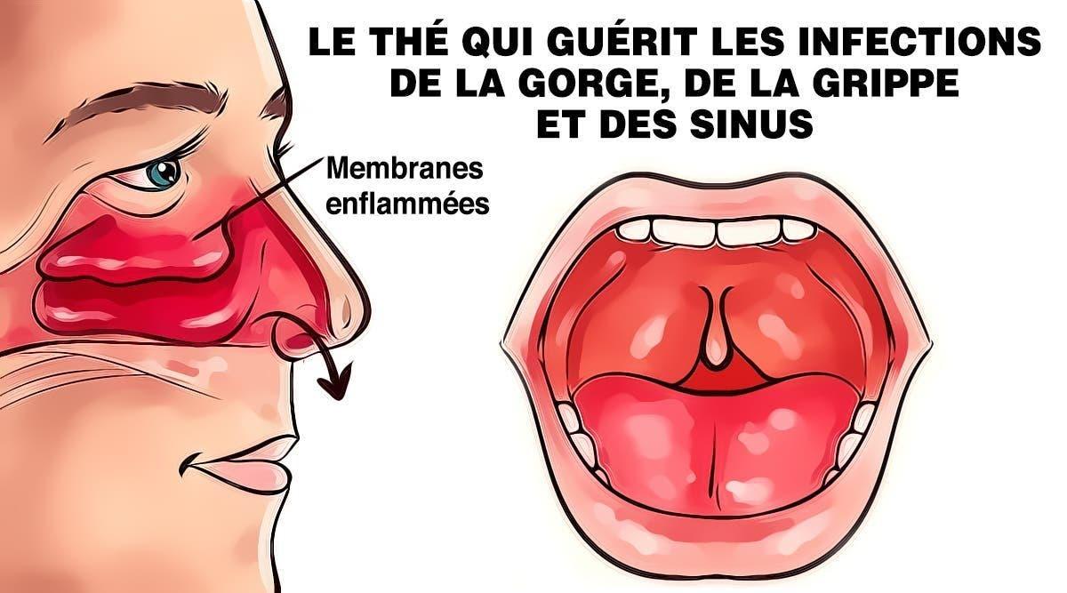 le-the-aux-plantes-qui-guerit-les-infections-de-la-gorge-de-la-grippe-et-des-sinus