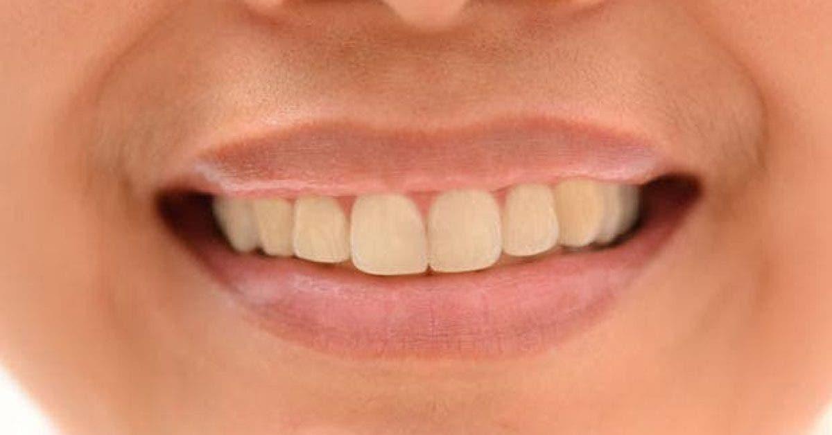 le top 10 des aliments qui jaunissent les dents 1