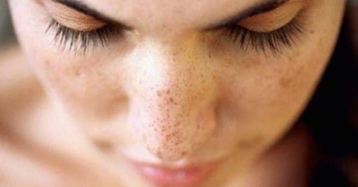 le traitement naturel le plus efficace contre les taches brunes 1