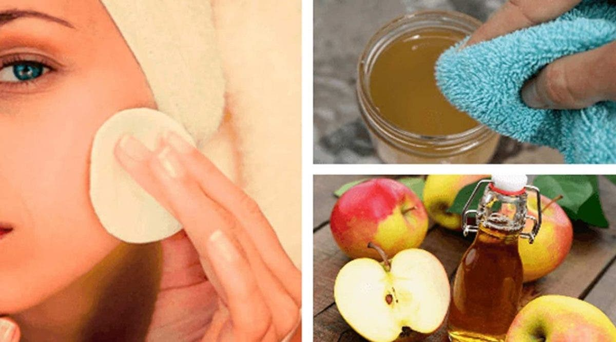 le-vinaigre-de-pomme-elimine-les-taches-la-peau-grasse-les-boutons-et-eclaircit-les-cheveux-voici-4-facons-de-lutiliser