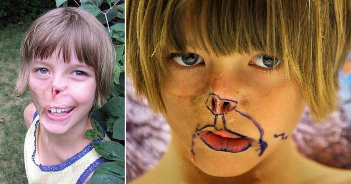 le visage dune fille a ete devore par un raton laveur 13 ans plus tard les medecins realisent son reve grace a la chirurgie 1 1