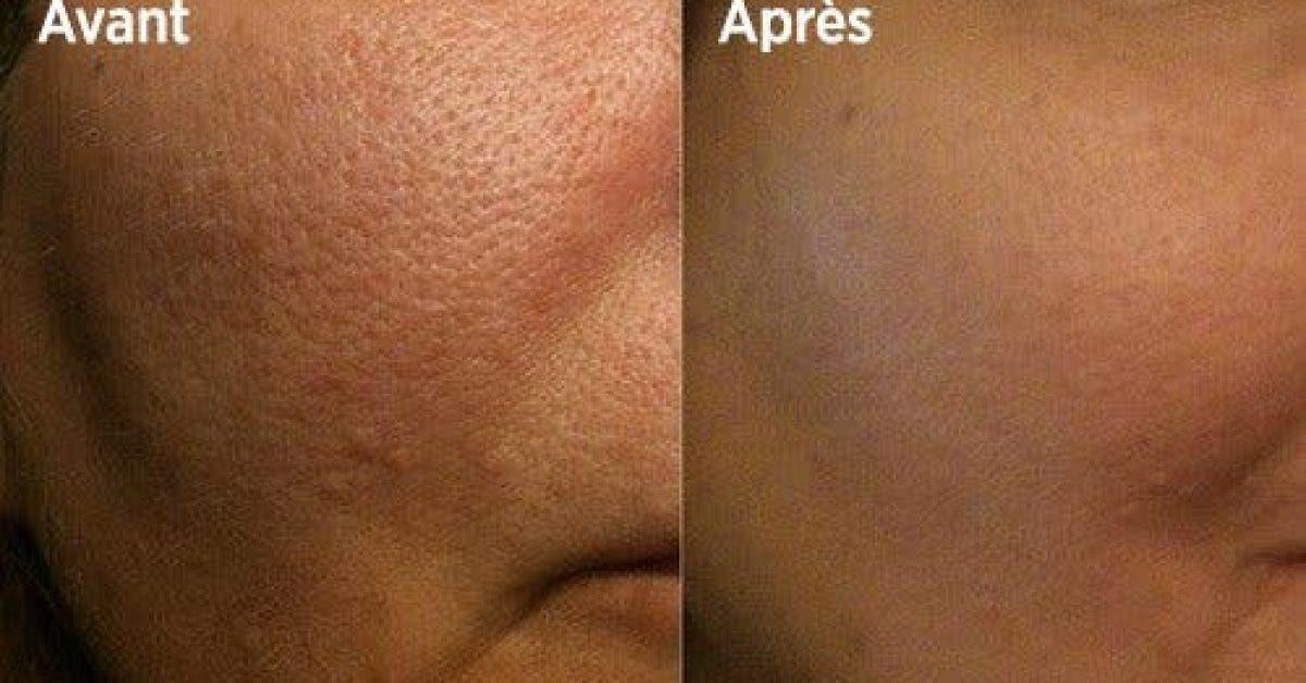 les 10 meilleures astuces pour resserrer les pores 1